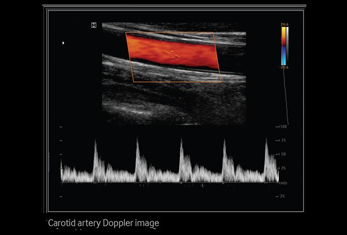 Carotid artery Doppler image
