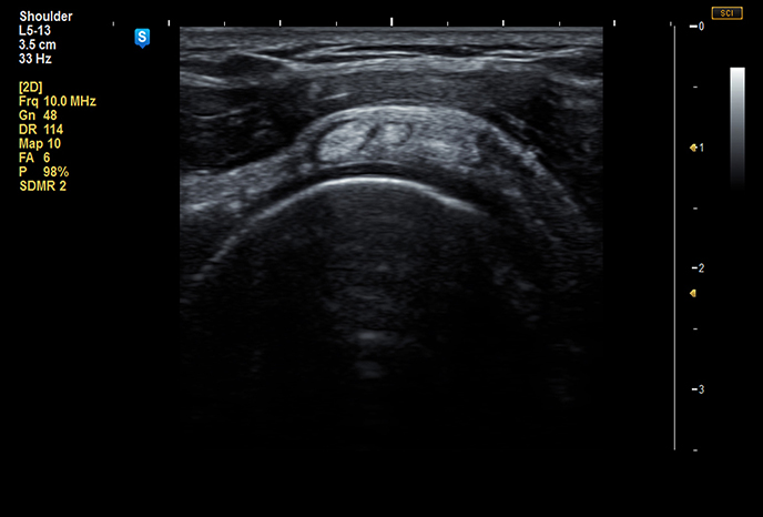 Subscapularis tendon